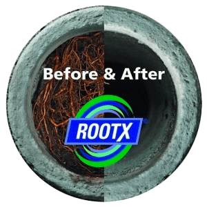 Rootx Treatment Before and After